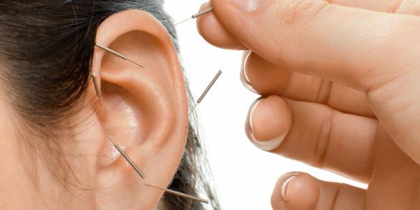 Acupuncture – Oreille