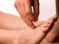 acupuncture-soigner