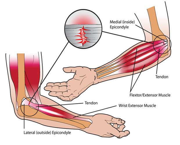 épicondylite - soulager la douleur avec l'acupuncture